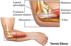 Best Physical Therapist NYC Tennis Elbow Muscles