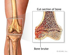 Best Physical Therapist NYC for Bone Bruises 01