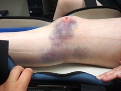 Best Physical Therapist NYC for Bone Contusion 02