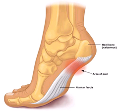 Best Physical Therapist NYC for Plantar Fasiciitis Heel Pain 01