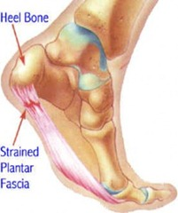 Best Physical Therapist NYC for Plantar Fasiciitis Heel Pain 02