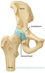 Best Physical Therapist NYC for Total Hip Replacement 01