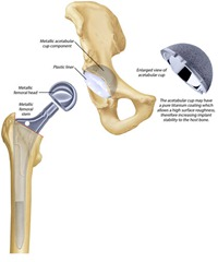 Best Physical Therapist NYC for Total Hip Replacement 02