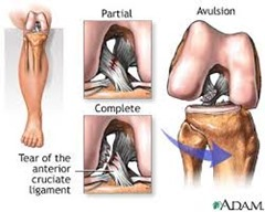 Best Physical Therapist for ACL injury 02
