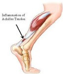 Physical Therapy for Achilles Tendonitis p01