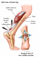 Physical Therapy For Achilles Tendon Pain NYC P04.jpg