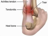 Physical Therapy For Achilles Tendon Pain NYC P05.jpg
