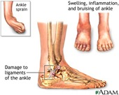 Physical Therapy for Ankle Pain NYC PO1.jpg