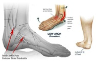Physical Therapy for Ankle Pain NYC PO2.jpg