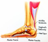 Physical Therapy for Foot Pain PO2