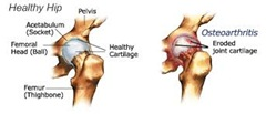 Physical Therapy for Hip Pain NYC1