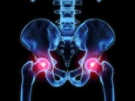 Physical Therapy for Hip Pain PO5
