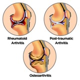 Physical Therapy for Knee Pain NYC 5