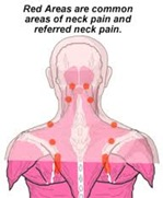 Physical Therapy for Neck Pain NYC 3