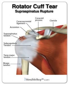 rotator-cuff-supraspinatus-tendon-tear
