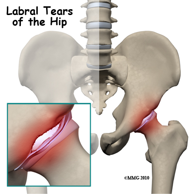 Hip_Labral_Tear