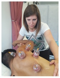 cupping procedure nyc p03