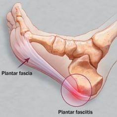 plantar fascia fascitis foot anatomy