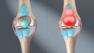 Shoulder, Knee, Hip Bursitis PT NYC